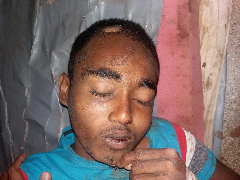 Unidentified patients regain consciousness after thirteen days.